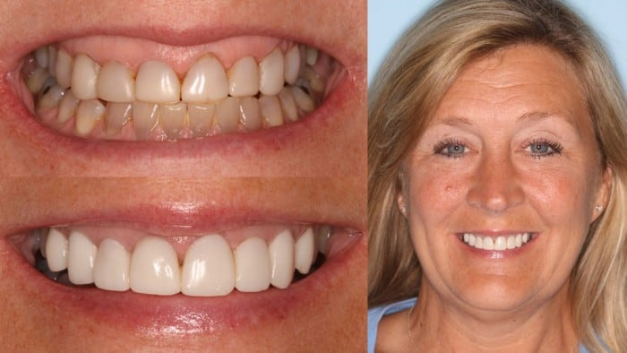dental before and after photos - Evansville - Norton Dentistry